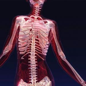 Osteoarthritis lecture