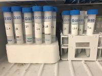Frozen soil sample extractions